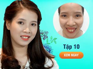 Tập 10 - Phẫu thuật vẩu hàm cho cô gái trẻ