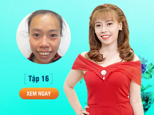 Tập 16 - Phẫu thuật hàm hô miễn phí cho cố gái nghèo Tiền Giang