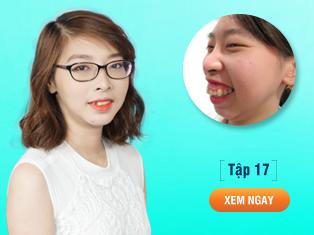 Tập 17 - Cô gái Hà Nội lột xác sau phẫu thuật hàm hô-cằm lẹm