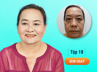Tập 18: Cứu chữa đôi mắt thảm hoạ do thẩm mỹ sai cách cho U60