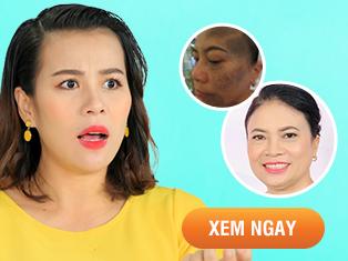 Tập 30: Hành trình trị sạm nám da của người phụ nữ U50 khiến Đại Ngọc Trâm phát hoảng.