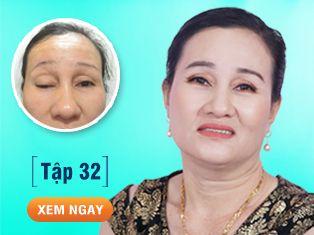 Tập 32: Chữa sụp mi bẩm sinh cho người phụ nữ 48 năm không mở to được mắt.