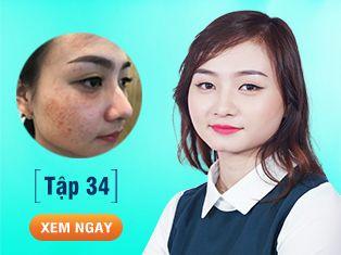 Tập 34: Sẹo rỗ kín mặt do sai lầm trị nám khiến cô gái trẻ nhận ngay trái đắng.