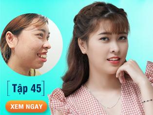 Tập 45: Cô giáo mầm non mặc cảm vì hô nặng, quyết phẫu thuật để thấy đời đẹp hơn.