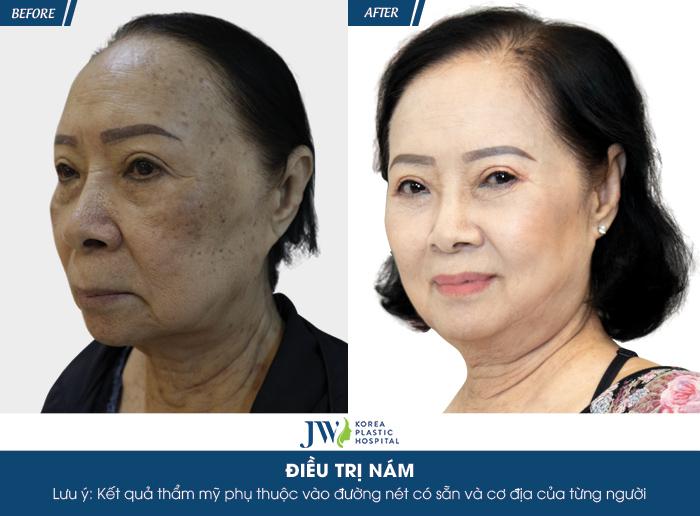 Ca sĩ Đông Quân phát cuồng với làn da đẹp của người phụ nữ U75 sau trị nám - hình 5