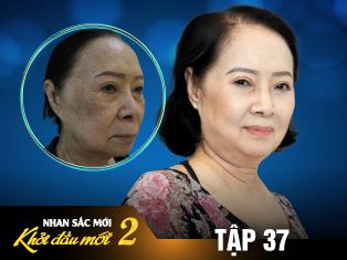 Tập 37: Người phụ nữ U75 bị lầm tưởng là U55 chỉ sau 3 lần điều trị nám da mặt