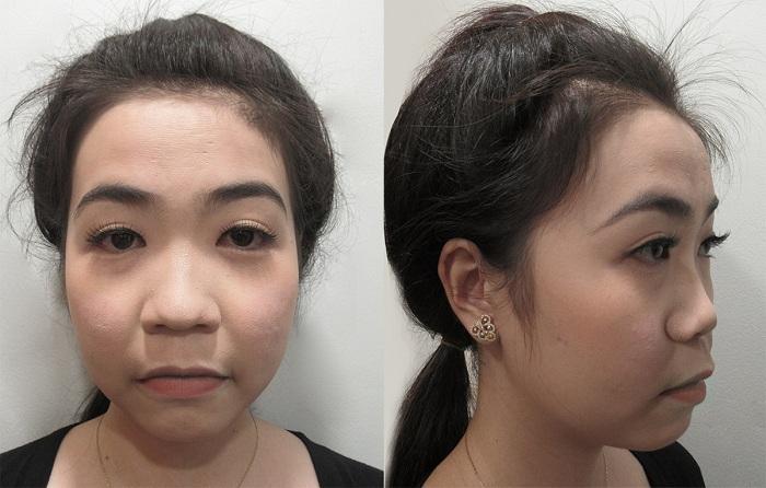 """Diễn viên Hà Trí Quang """"phát cuồng"""" với nhan sắc của """"Người đẹp Tây Đô"""" sau nâng mũi - hình 1"""