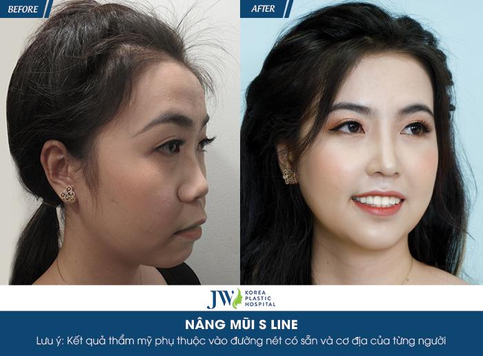 """Diễn viên Hà Trí Quang """"phát cuồng"""" với nhan sắc của """"Người đẹp Tây Đô"""" sau nâng mũi - hình 5"""