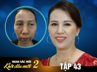 Tập 43: Người phụ nữ trầm cảm vì 7 năm trị nám không dứt và cái kết