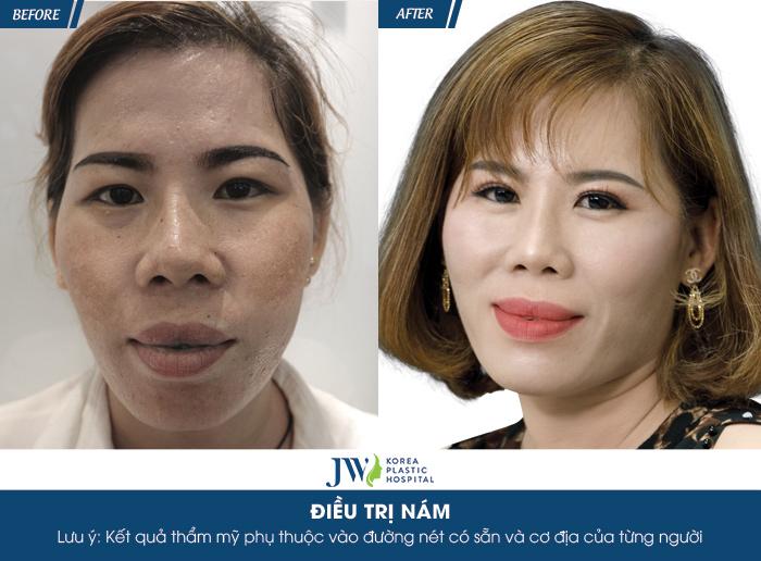 Diễn viên Lê Bê La xót xa trước làn da nám nặng của người phụ nữ 4 năm dùng kem trộn - hình 6