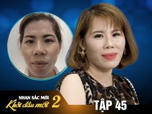 Tập 45: Người phụ nữ An Giang với bài học xương máu 4 năm dùng kem trộn