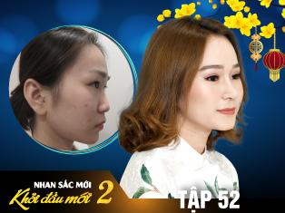 Tập 52: 9X Việt Kiều Đẹp Tựa Thiên Thần Sau Khi Nâng Mũi